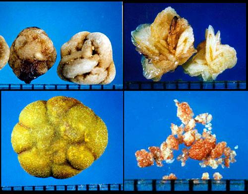Виды мочевых камней